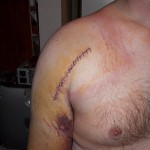 The surgical entry wound for my hemi-arthroplasty